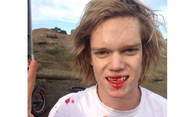Sam King has smiles with a bloody mouth.