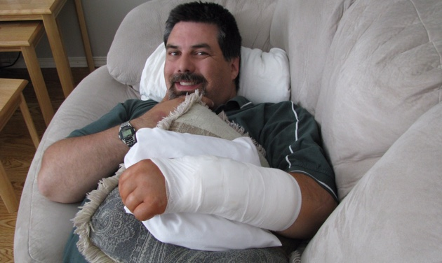 Darren Stolz lays on a couch with his arm in a cast.